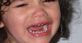 reasons of toothache in children